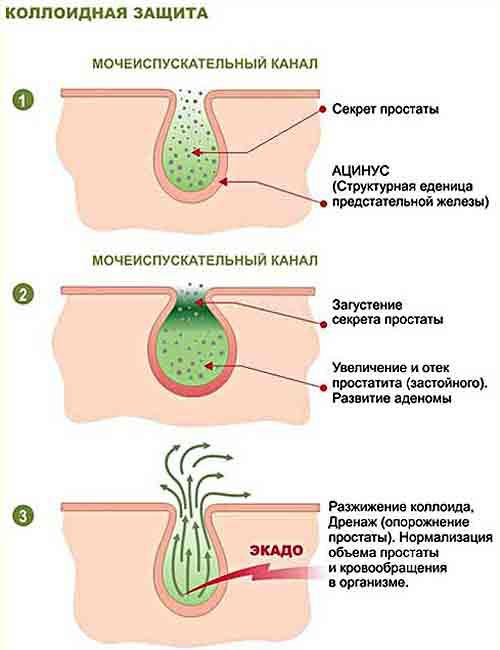 преждевременного семяизвержения: